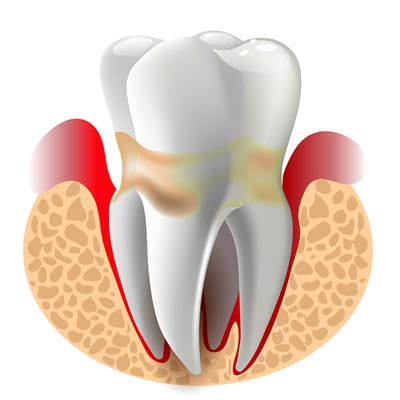 tooth illustration with gum disease